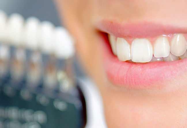 NW Calgary Porcelain Veneers | Scenic Acres Dental Centre