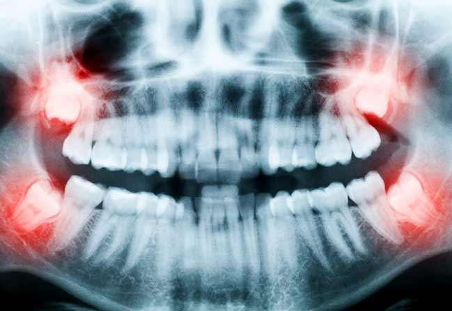 NW Calgary Wisdom Teeth Extraction | Scenic Acres Dental Centre